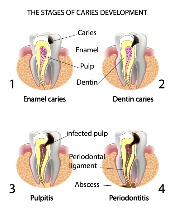complete-dental-works-the-stages-of-caries-development