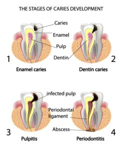 the-stages-of-caries-development-copy