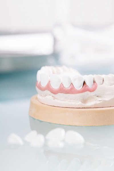 Complete Dental Works dentures Annerley
