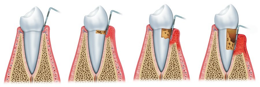 Complete Dental Works Development of periodontitis