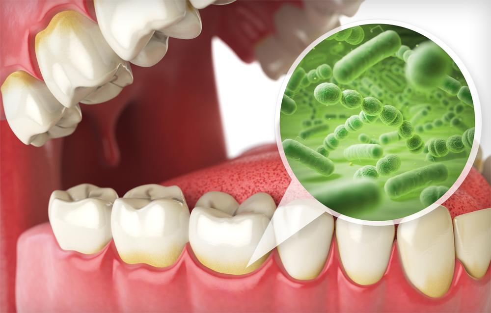Complete-dental-works-Annerley-dentist-enamel-Blog