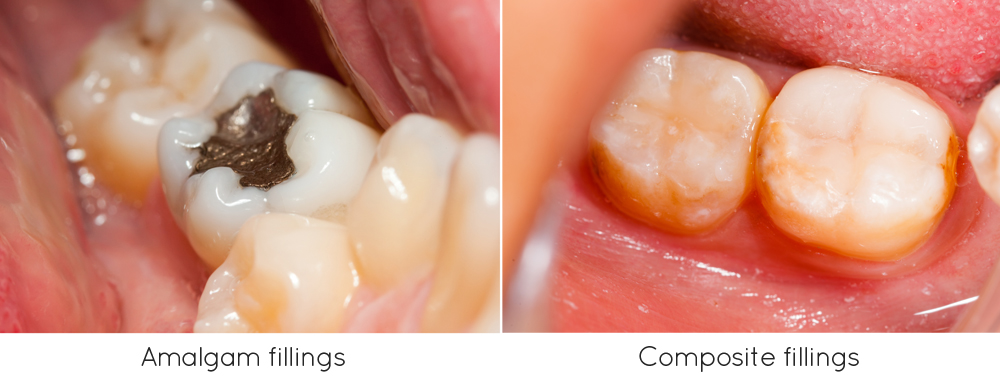 Annerley dental - Amalgam Filling