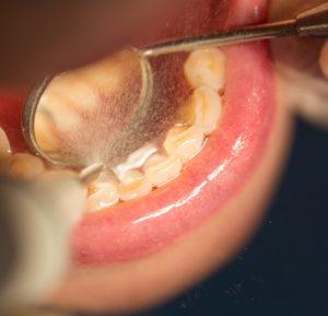 Complete-dental-works-teeth-plaque-prevent-gum-disease