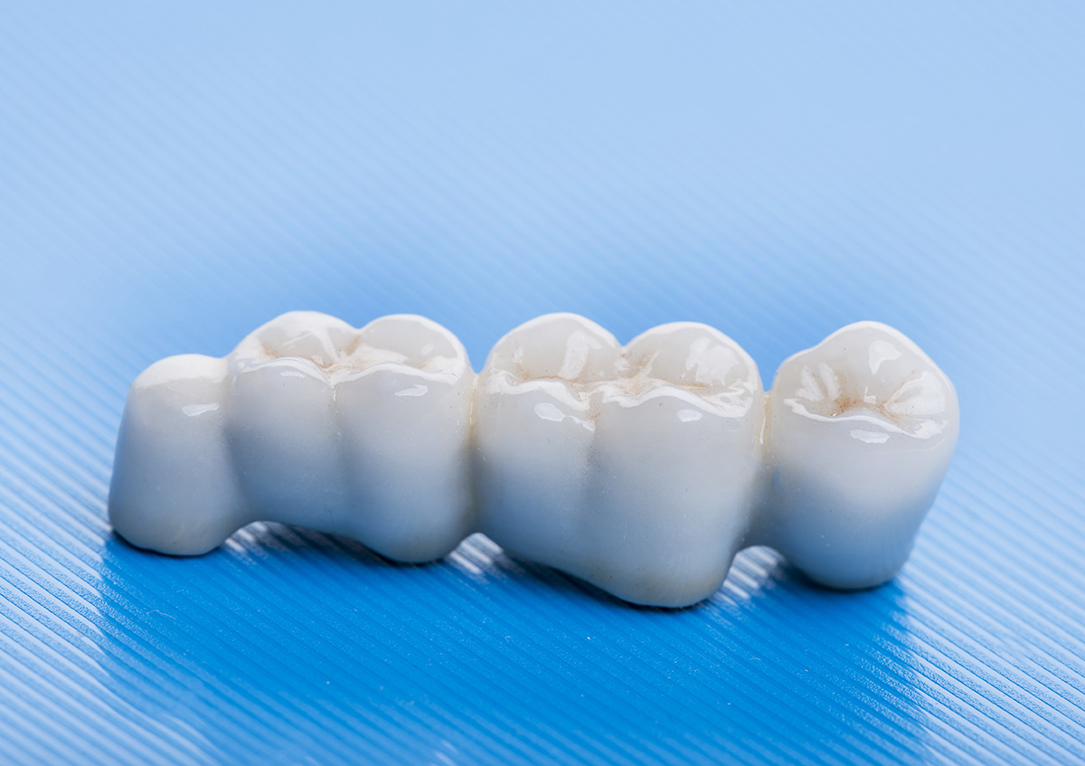 Complete-Dental-works-Annerley-dental