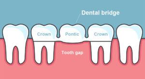 annerley-dentist-dental-bridges-instllation-Brisbane