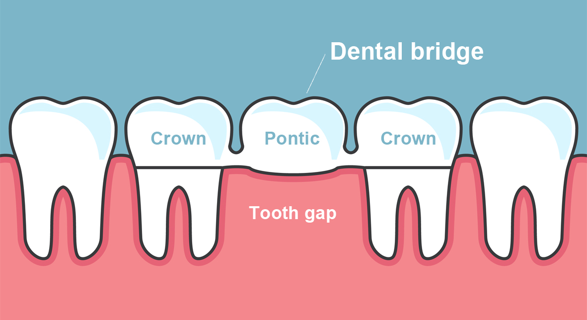 annerley-dentist-dental-bridges-instllation-Brisbane