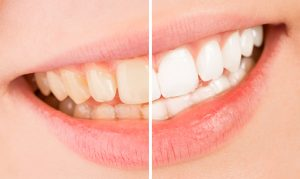 Annerley-dentist-Teeth-whitening-before-after