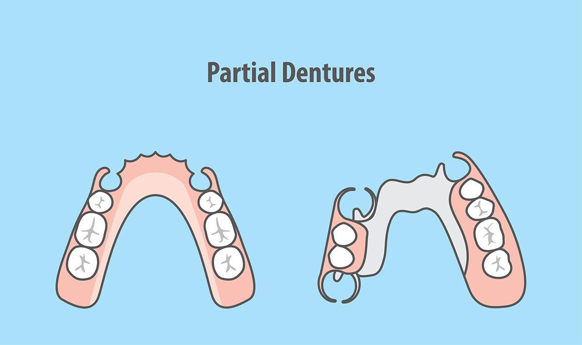 Annerely-dentures-Complete-Dental-Works