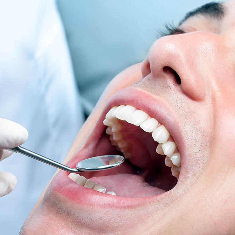 Annerley-Composite-Dental-Fillings