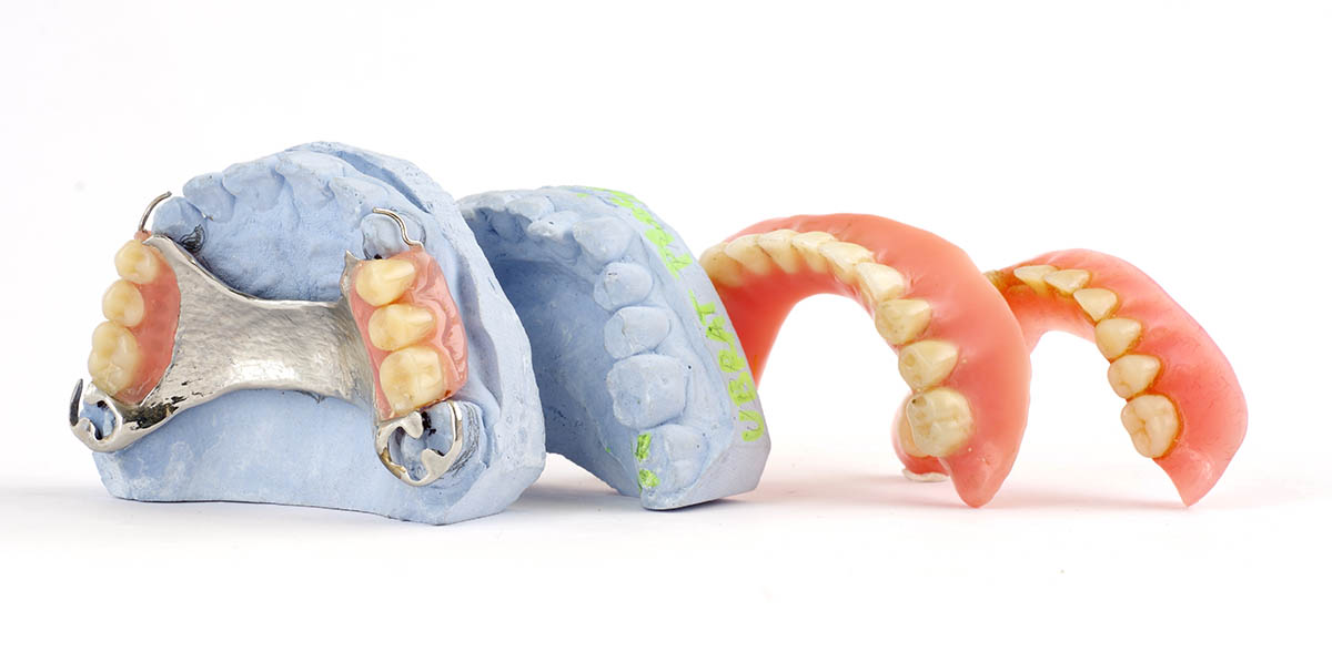 Annerley-Dental-Complete-Dental-Works-dentures