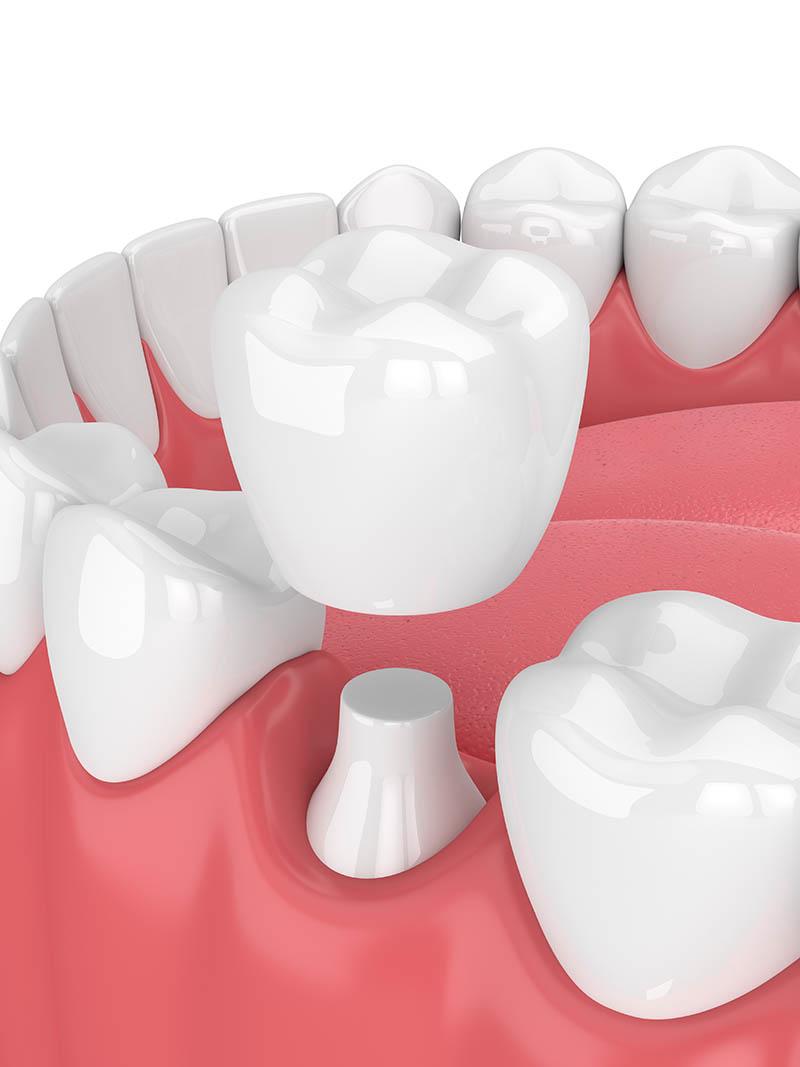 Annerley-Dentral-crown-Complete-dental-work