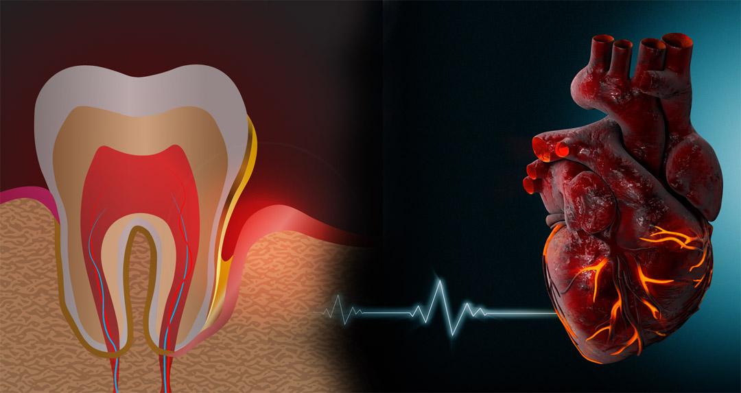 TC-Dental-gingivitis-heart-health
